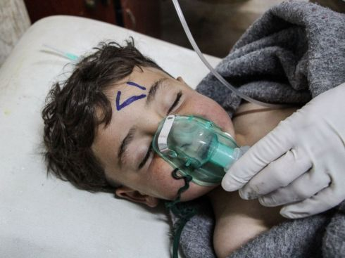Boy victim of Chemical attack